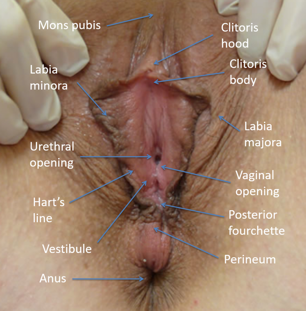 Labelled colour photograph of a vulva, showing the different parts